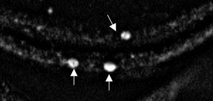 A microscope image showing long string-like structures with bright blobs in three locations.