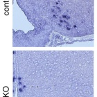 A pair of microscope images. In each, dark granular areas show expression of mRNA for growth hormone-releasing hormone (GHRH) in the hypothalamus of a young mouse with functioning copies of the MLL4 gene, and of a littermate with the MLL4 gene deleted. There are markedly fewer dark granular areas in the mouse with the MLL4 gene deleted.