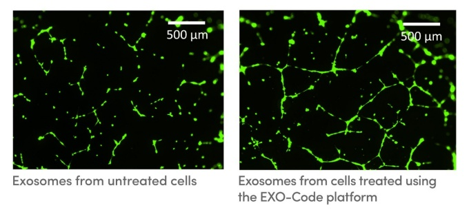 Exosomes, tiny, pouch-like vesicles that are secreted by cells and that could be used as tools for delivering drugs and treating disease. One photo shows exosomes from untreated cells, the other exosomes from cells treated using the EXO-Code platform